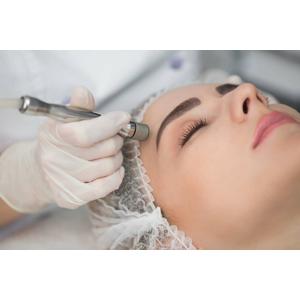 Diamantová mikrodermabrázia - účinná a bezpečná procedúra na omladenie tváre, určená pre všetky typy pleti
