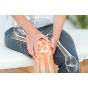 Marine Collagen alebo Collagen Gold pre zdravé kosti, kĺby a pre žiarivú a krásnu pleť
