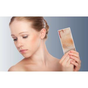 Odstránenie červených žiliek na tvári alebo na tele v Beauty Esthetic Centrum